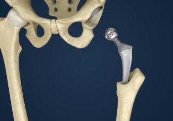 Come allungare la vita delle protesi dell'anca