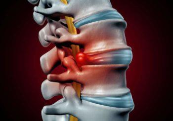 Ernia del disco lombare: sintomi, cause e trattamenti