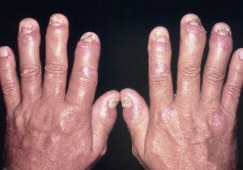 Artrite psoriasica, quali manifestazioni extra-articolari sono più frequenti?
